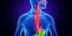 علاج ارتجاع المريء أعراض ارتجاع المريء اسباب ارتجاع المريء موقع ومن أحياها