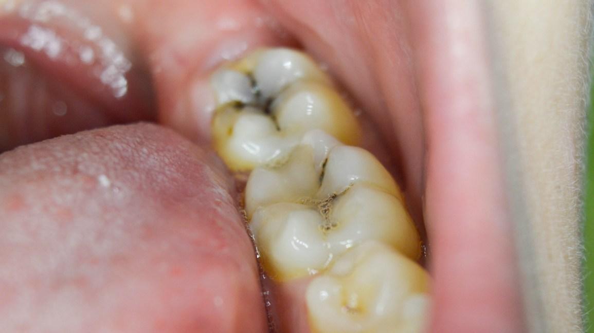 تسوس لأسنان