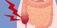 التهاب الزائدة الدودية Appendicitis