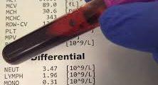فحص الدم الشامل CBC