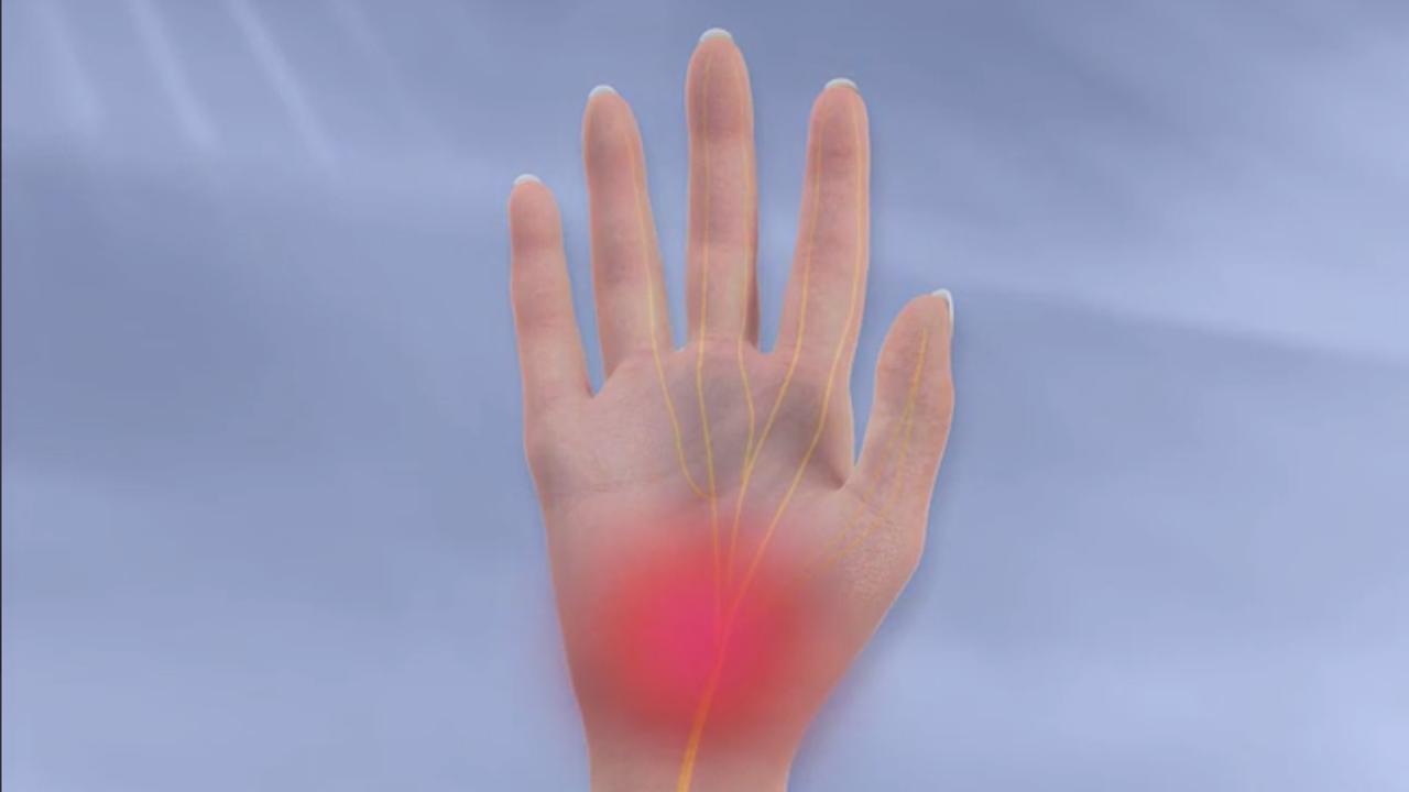 متلازمة النفق الرسغي اسباه وتشخيصها وعلاجها