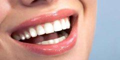 البقع البيضاء أثناء تقويم الأسنان بالأجهزة الثابتة