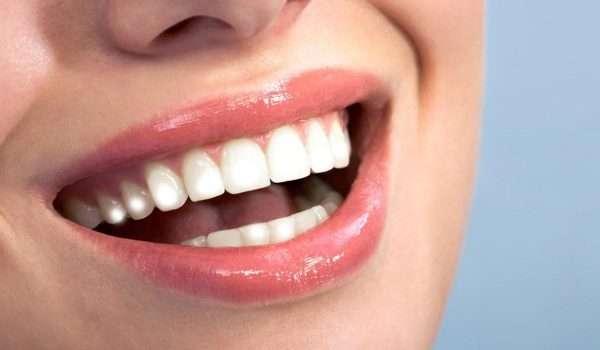 البقع البيضاء على الاسنان اثناء استخدام التقويم