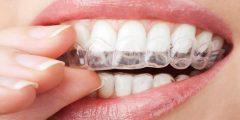 التقويم الشفاف للأسنان