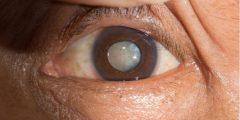الماء الابيض على العين الوقاية منها وعلاجها واهم علاماتها وأعراضها