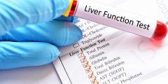 فحص وظائف الكبد